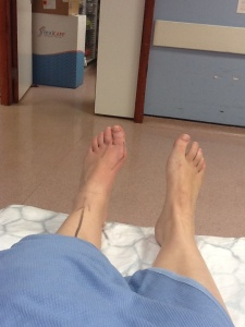 No guessing which foot was going under the knife!